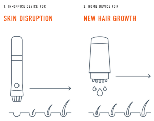 follicle thought ultimate guide